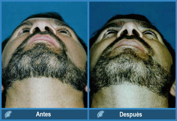 rinoplastia-hombres-2