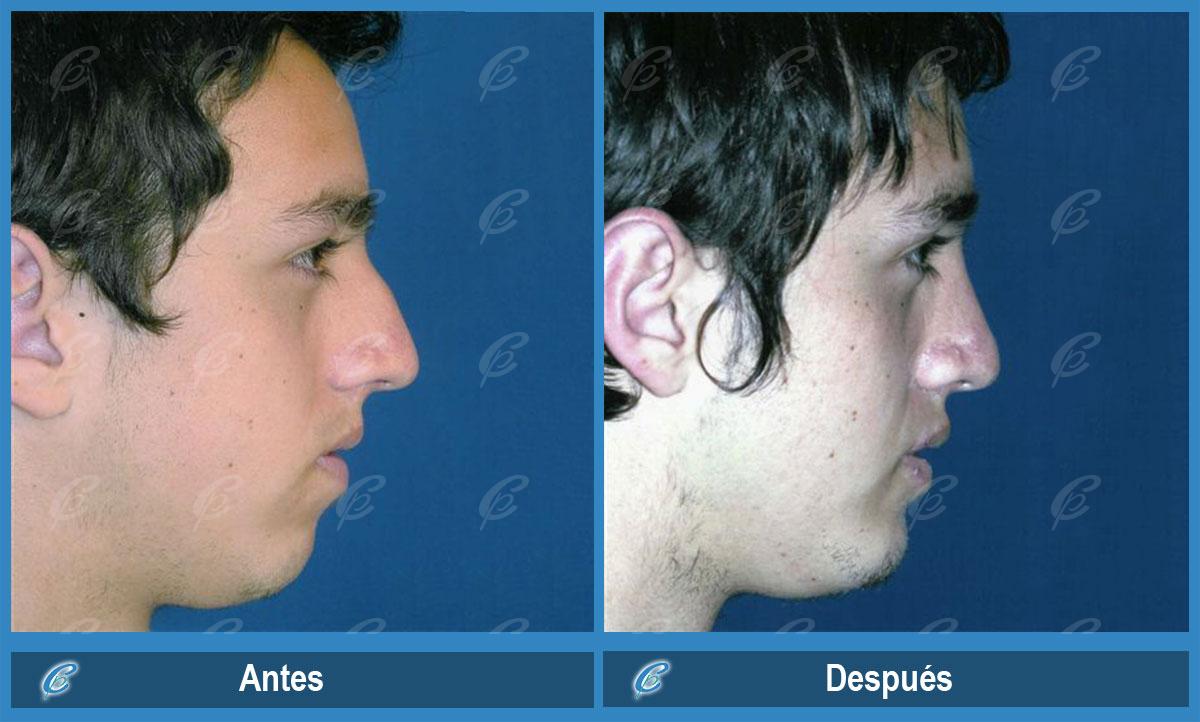 mentoplastia antes y despues